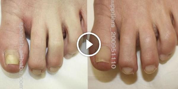 Elimina el hongo de las uñas