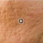 como minimizar los poros del rostro